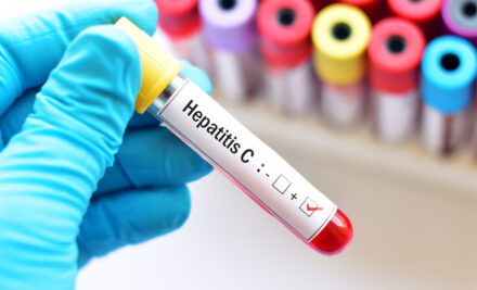 HEPATİT C haqqında